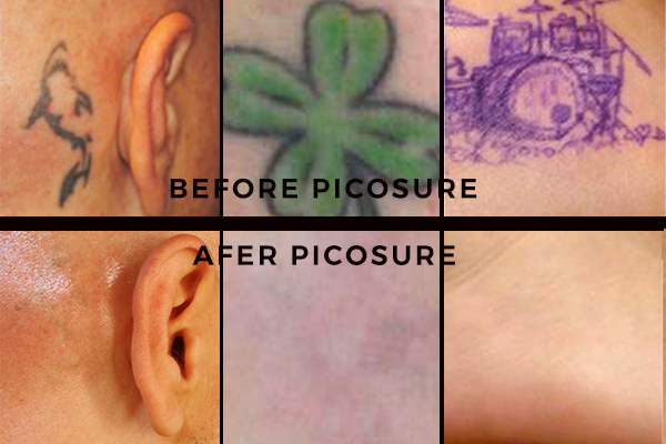 Oklahoma city dermatology tattoo removal dr clements for Picosure tattoo removal maryland